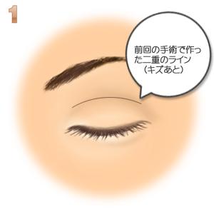 重瞼修正術(二重幅を狭める):古い二重ライン