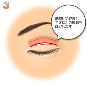 重瞼修正術(二重幅を狭める):剥離