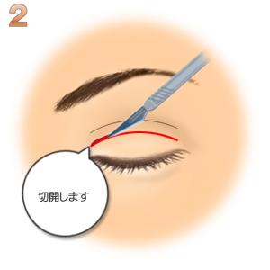 重瞼修正術(二重幅を狭める):二重切開