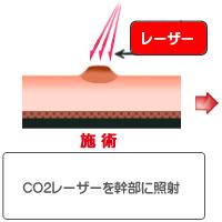 CO2 レーザー(ほくろ・いぼ)治療術前イラスト