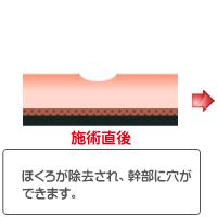 CO2 レーザー(ほくろ・いぼ)治療術後イラスト