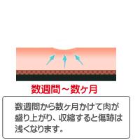 CO2 レーザー(ほくろ・いぼ)治療経過イラスト