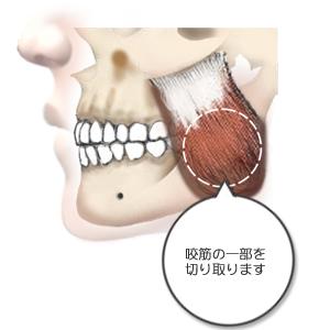 咬筋萎縮:施術イラスト