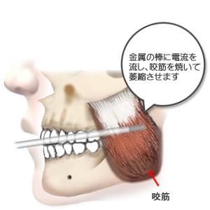 咬筋萎縮(TCR):施術イラスト