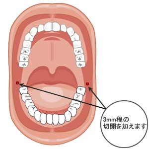 咬筋萎縮(TCR):口腔内切開位置t