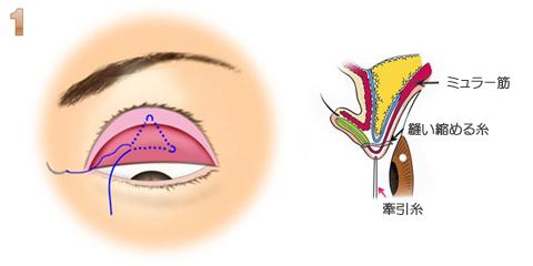 目力アップ:瞼の裏に糸を通す